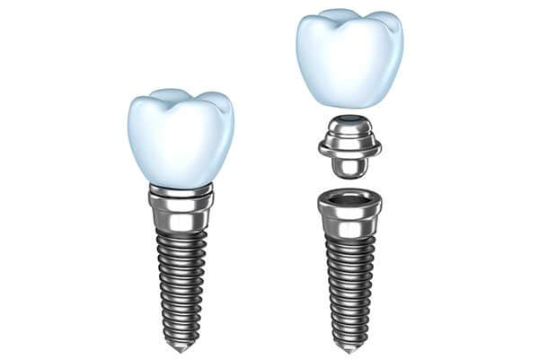 Single Dental Implants in Carmel, NY