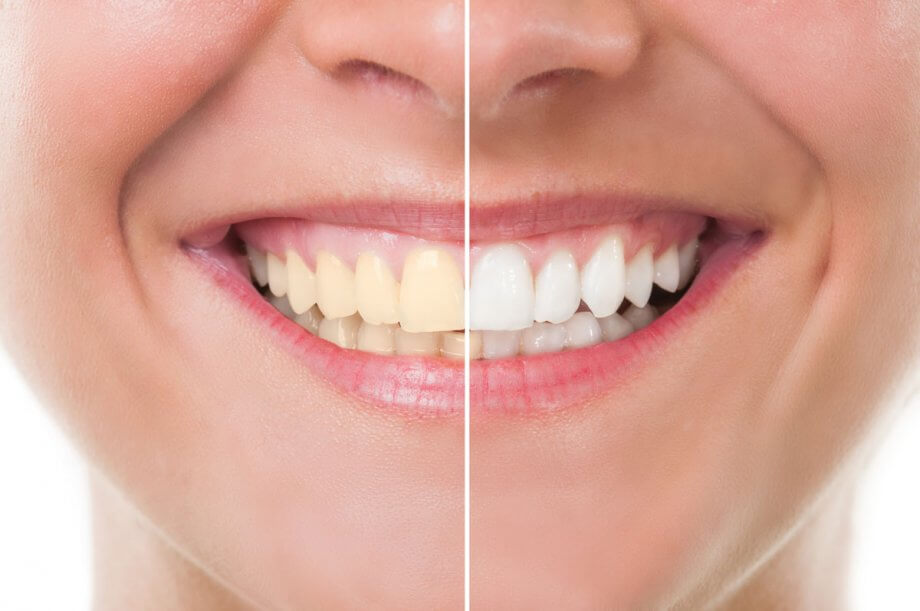 before and after picture of woman smiling after teeth whitening